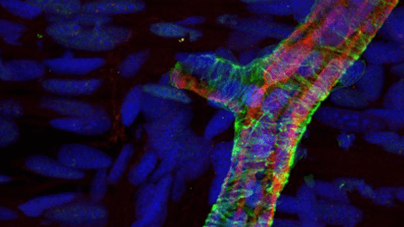 Microscopy image of limb regeneration