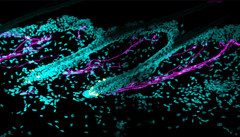 Microscopy image of hair follicles.