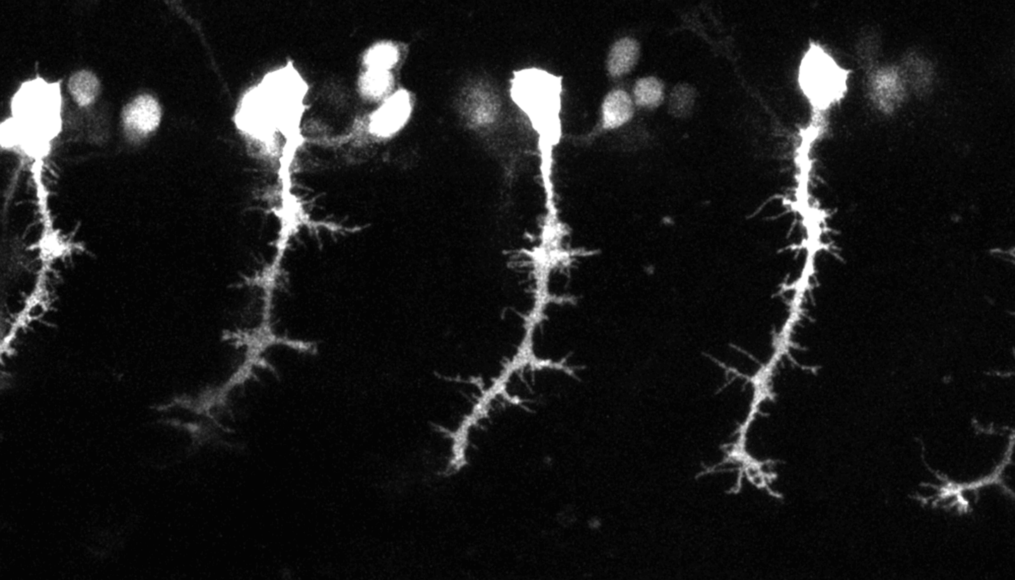 Microscopy image of zebrafish neurons.
