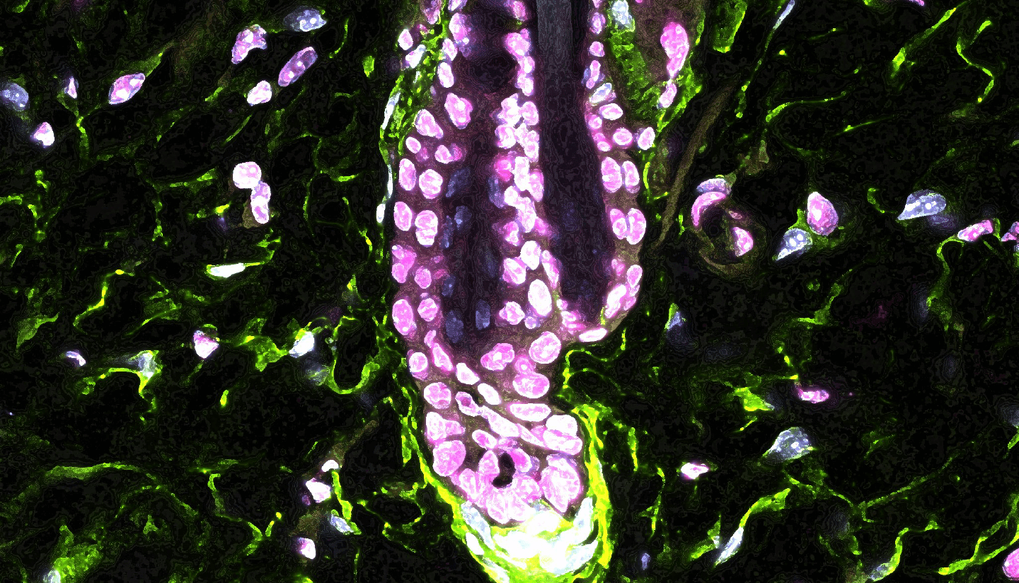 Microscopy image of the mouse hair follicle.