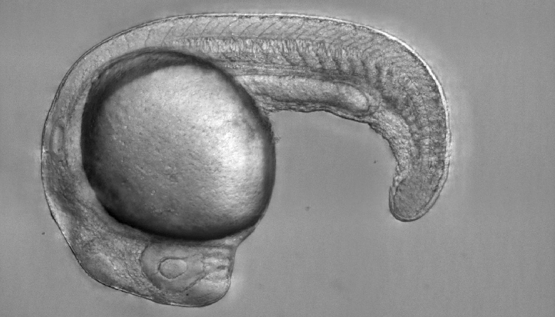 Microscopy image of zebrafish embryo.
